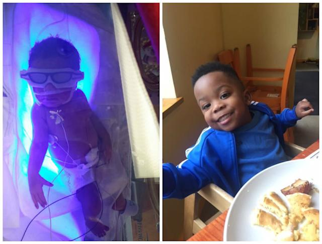 """Here are my two photos of my now 2-and-a-half-year-old son, Trey. He was born two months early, on March 1, 2015, shortly after a visit from New Orleans to Milwaukee for a baby shower. He required a 23-day NICU stay at St. Joseph's Hospital, and Mom stayed in Milwaukee while Dad returned to work in New Orleans. He was known as """"Sweet Baby Eddie"""" and did not miss a thing in the NICU. <br><br>As promised by a NICU nurse, his personality sure did change, and he is now a precocious toddler. Mom looks forward to bedtime at 8p.m. every day.<br><br><i>-- Emerald Lee</i>"""