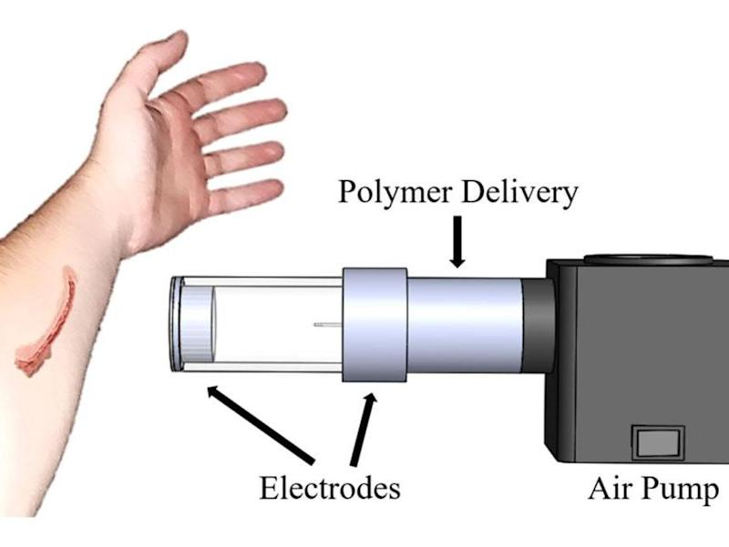 The device (artist's impression) uses air to spray fibres (polymer) onto the surface of the skin, similar to a can of spray paint: MTU