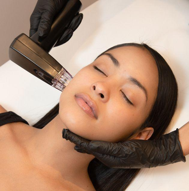 A patient undergoes remodeling, which combines microneedling and radiofrequency technology to tighten loose skin. (Photo: Luxbae Medical Spa)