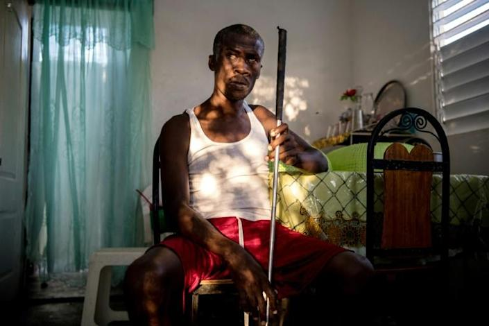 Osner Victor, 41, lost sight in both eyes during the January 2010, earthquake (AFP Photo/CHANDAN KHANNA)