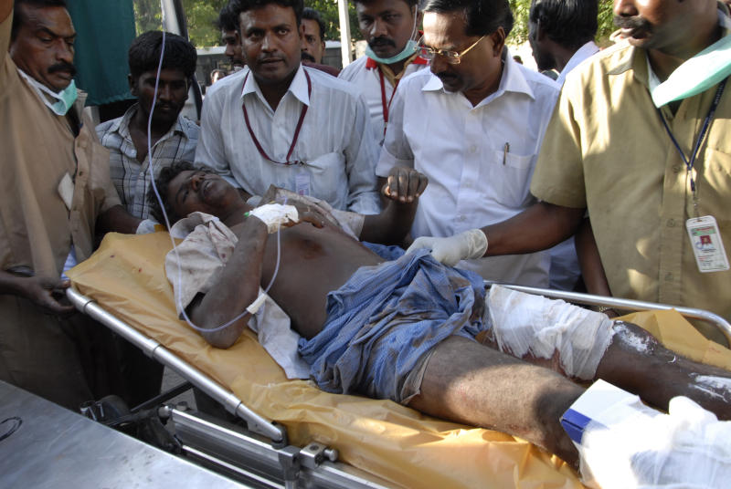 An injured person is rushed for treatment after a massive blaze swept through the Om Siva Shakti fireworks factory in Sivakasi, about 650 kilometers (400 miles) southwest of Chennai, India, Wednesday, Sept.5, 2012. Large amounts of firecrackers and raw materials were stored in the factory with major Hindu festivals weeks away.  Dozens of workers were killed and dozens were injured in the fire, the cause of which was not immediately known.(AP Photo)
