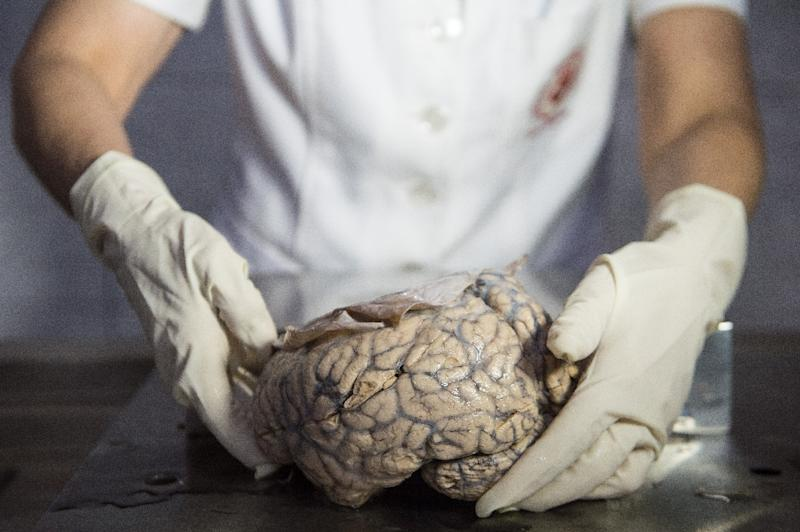 "Dr Diana Rivas displays a human brain on a working surface at the ""Museum of Neuropathology"" in Lima, Peru (AFP Photo/ERNESTO BENAVIDES)"