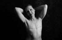 Angela Crossland, 46, from Buckinghamshire, was diagnosed with breast cancer in 2018. <em>[Photo: Ami Barwell/PA Wire]</em>