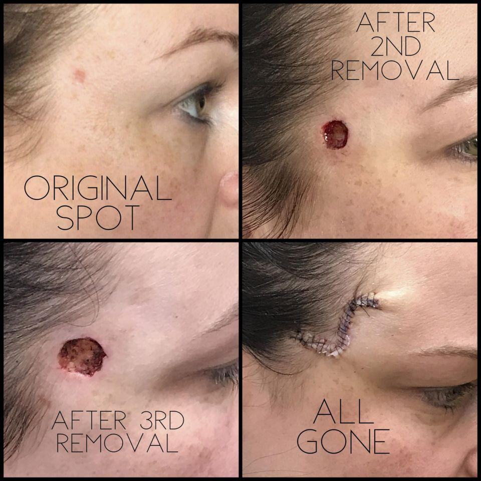 The growth — which left Jones with a hole the size of a nickel on her forehead — was removed and required over 20 stitches to close. (Photo: Caters)