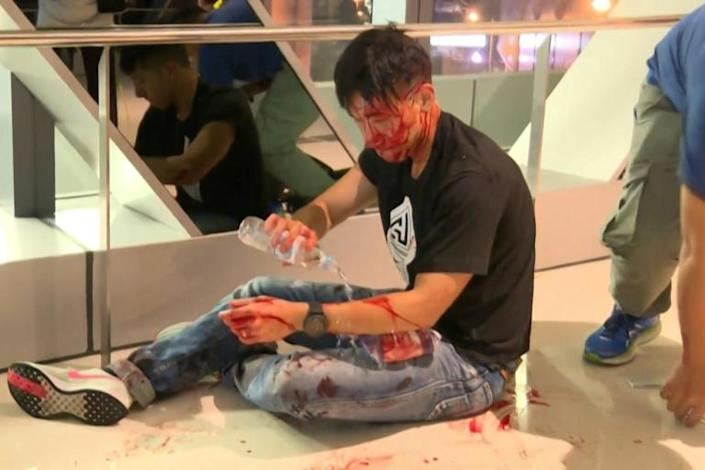 A pro-government mob attacked protesters in Hong Kong, leaving 45 people wounded according to hospital authorities (AFP Photo/Handout)