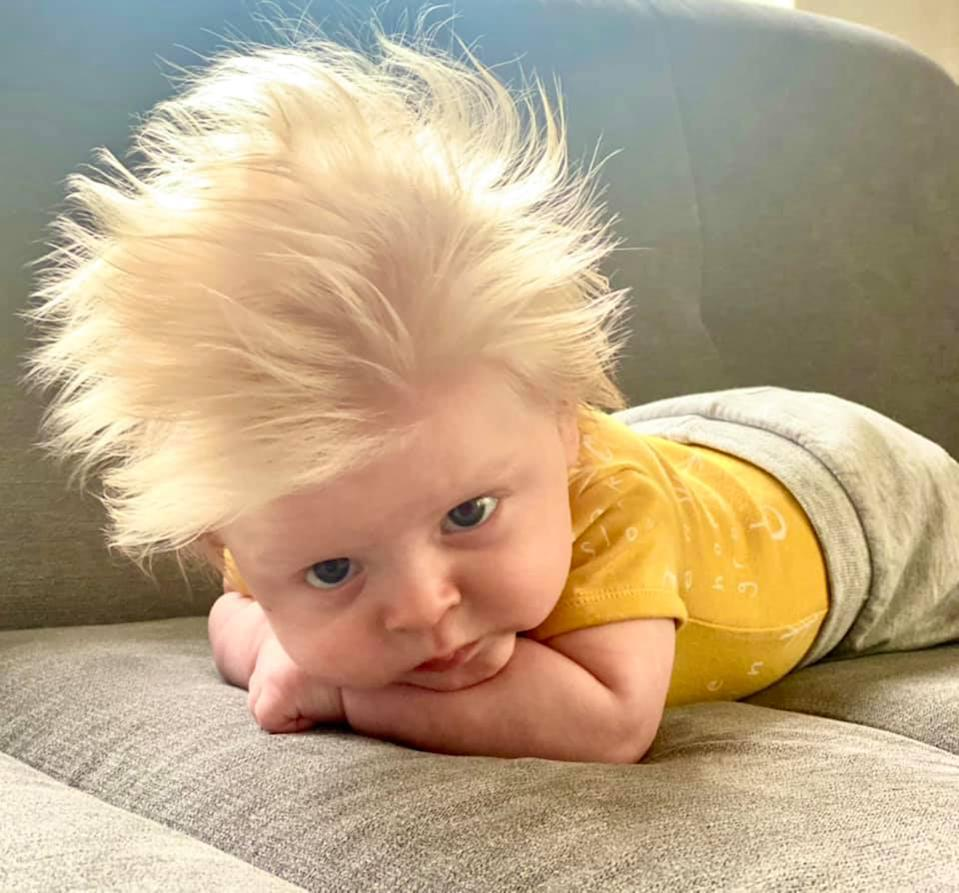 David is now three months old and has very thick, blond hair. (Caters)