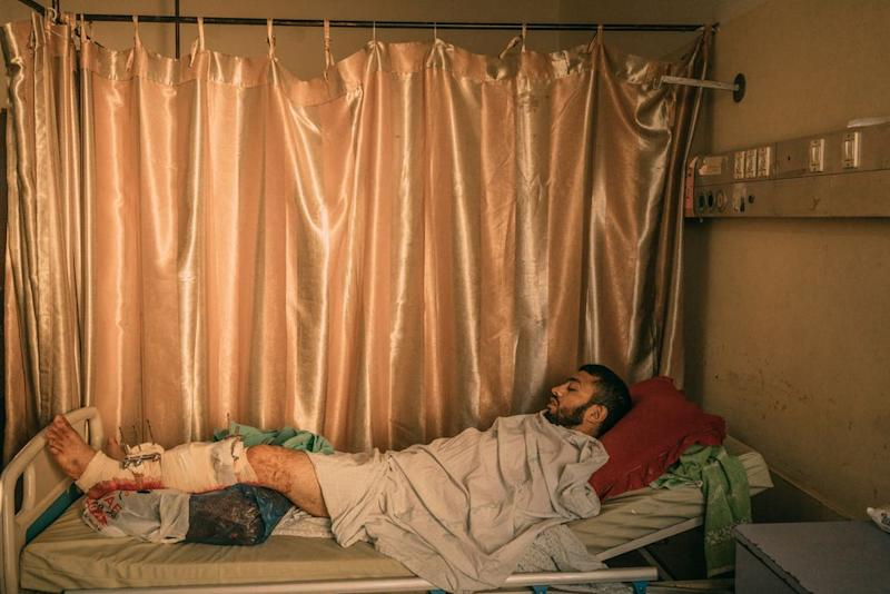 Ibrahim Dahir, 32, whose left leg was injured by Israeli troops during the protest, lays in a bed at Shifa Hospital in Gaza City.