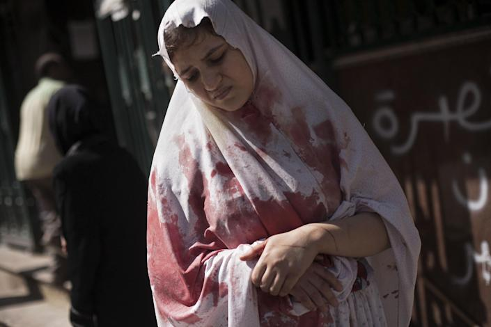 In this Thursday, Sept. 20, 2012 photo, a wounded woman, still in shock, leaves Dar El Shifa hospital in Aleppo, Syria. Dozens of Syrian civilians were killed on Thursday, four children among them, in artillery shelling by government forces in the northern Syrian town of Aleppo. (AP Photo/ Manu Brabo)