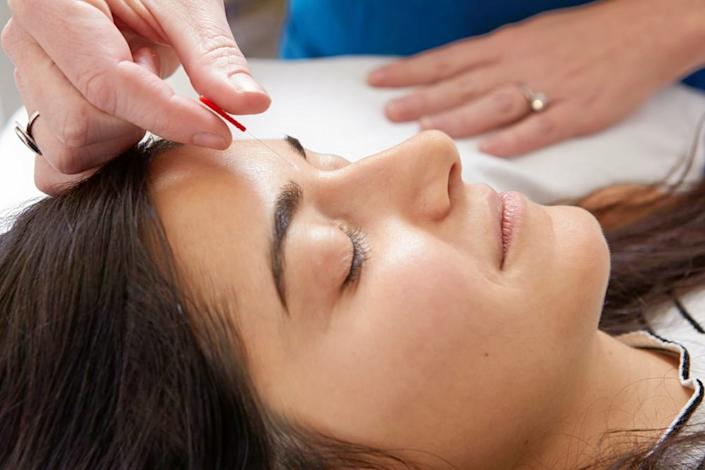 Here are Jersey City's top 4 acupuncture spots