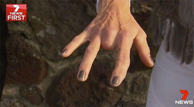 Scott lost a finger due to one of Murphy's attacks. Source: 7 News