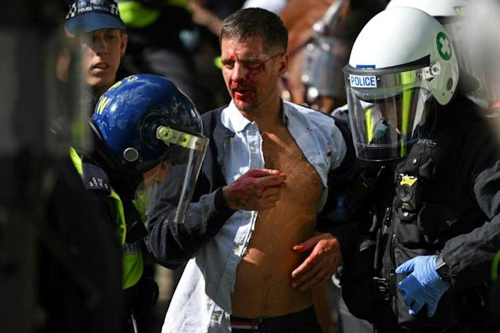 An injured man is taken away by police after clashes in Trafalgar Square as protesters supporting the Black Lives Matter movement clash with far-right demonstrators standing against racial equality in central London on June 13, 2020 (AFP Photo/DANIEL LEAL-OLIVAS)