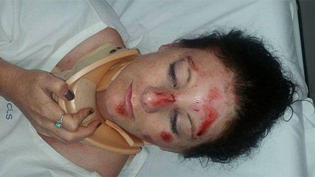 Police claim the Melbourne woman was aggressive and suffered minor injuries while resisting arrest. Photo: Facebook