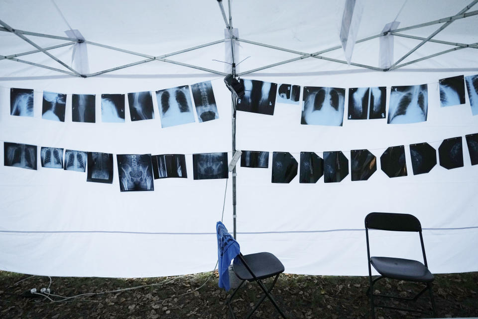 X-rays hang in a tent that is part of a protest camp in Warsaw, Poland, on Tuesday Sept. 21, 2021. Doctors, nurses and other health care workers have been camping out in front of the Polish prime minister's offices for nearly two weeks to protest their working conditions and demand higher wages. Poland has the lowest number of working doctors to its population in the 27-nation European Union, and its nurses are also stretched thin. (AP Photo/Czarek Sokolowski)
