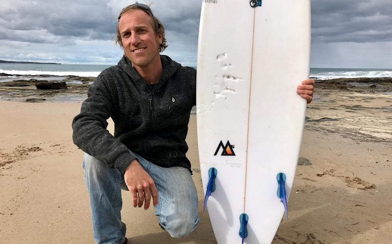 Marcel Brunder holds his board as he looks out to sea after being attacked while surfing in the waters near Lorne, Victoria - ABC News/Cameron Best
