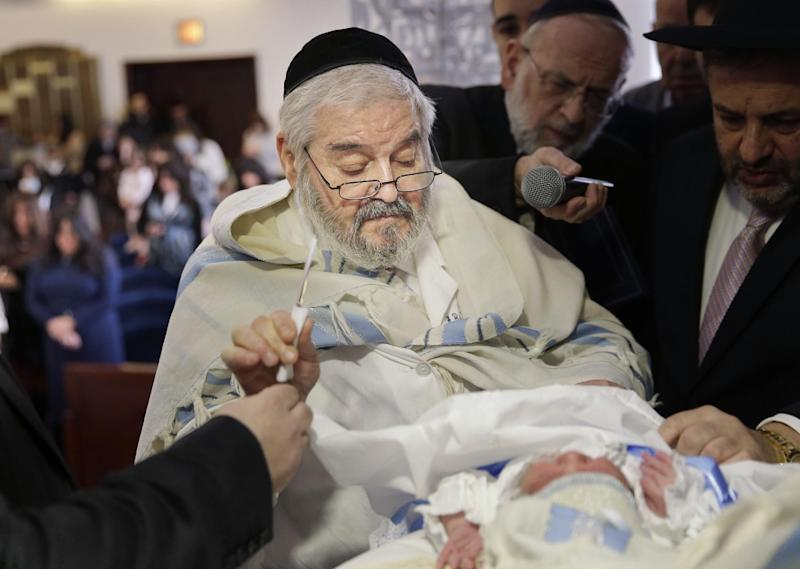 Ritual in Some Jewish Circumcisions Raises Risk of Herpes Infection: Report 2