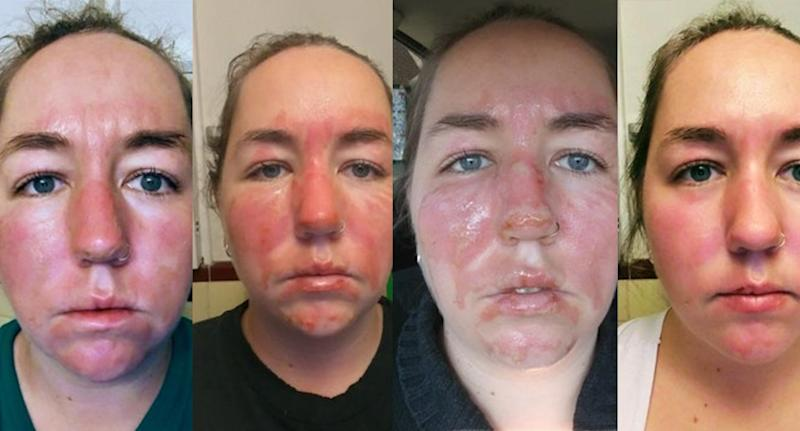 One woman shares her remarkable photo journey in healing from facial burns. (Photo: Reddit/bonniebelle29)