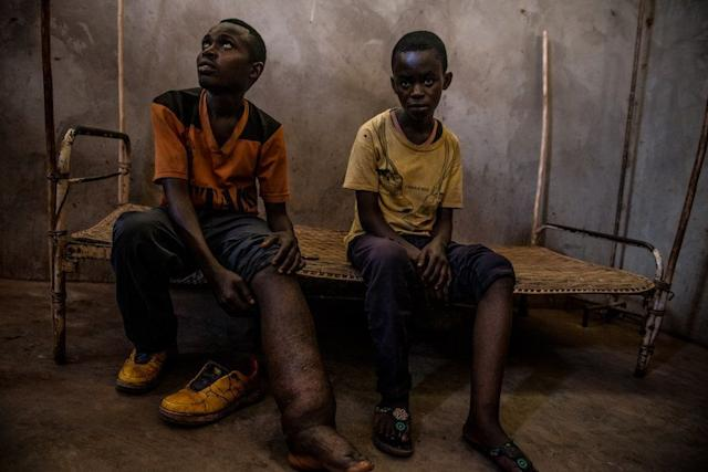 Two elephantiasis patients wait to meet with a traveling medical team in Uma.
