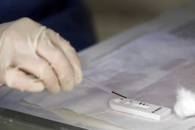 NITEROI, BRAZIL - APRIL 30: A health care worker looks at the test a test for patients suspected of being infected with for the coronavirus (COVID-19) at the Center Health Teixeira de Freitas, on April 30, 2020 in Niteroi, Brazil. According to the latest official data provided by the Ministry of Health, Brazil currently has 78,162 confirmed cases of coronavirus (COVID-19) and at least 5,466 registered deaths. (Photo by Luis Alvarenga/Getty Images)