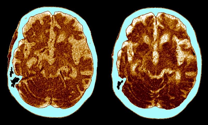 CT scans of a patient with Alzheimer's disease. If the protein therapy is effective in humans it could be a potent weapon against neurodegenerative diseases such as Alzheimer's.
