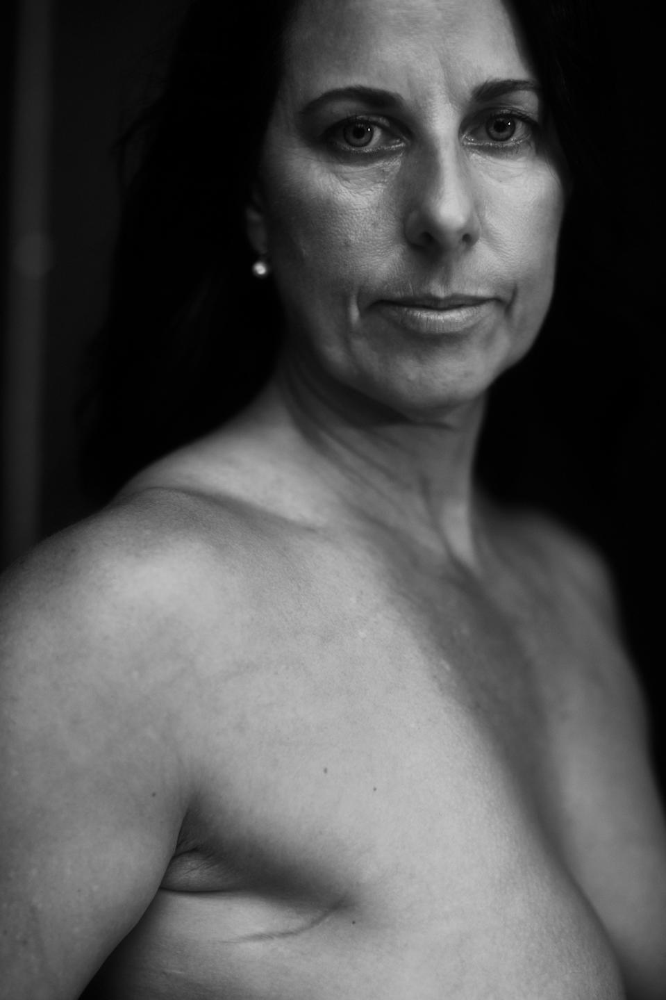Felicity Parker embraces the scar, under her arm, from breast cancer. (Photo: Courtesy of Project WomanKIND)