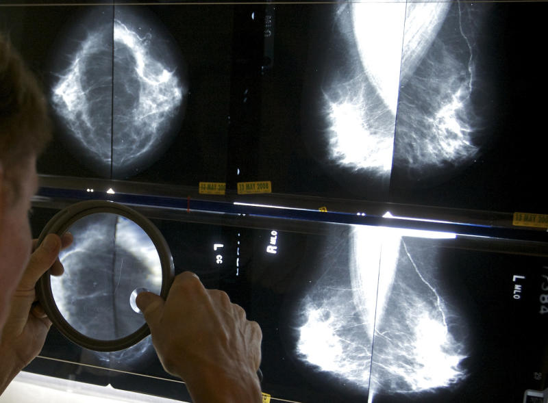 FILE - In this Thursday, May 6, 2010 file photo, a radiologist uses a magnifying glass to check mammograms for breast cancer in Los Angeles. A big U.S. study published in the Thursday, Nov. 22, 2012 New England Journal of Medicine shows that mammograms have done surprisingly little to catch deadly cancers before they spread. At the same time, they have led more than a million women to be treated for growths that never would have threatened their lives. (AP Photo/Damian Dovarganes, File)