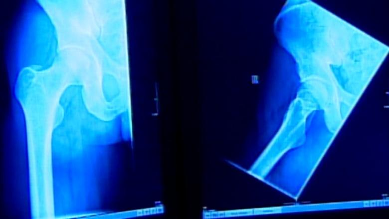 'Clinically significant' mistakes: 700 patients' X-rays and scans misread at Terrace hospital