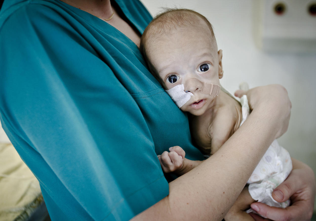 Baby Andrei, eight-month-old, son of Roma underage parents clenches his fist from the arms of a nurse in the intensive care unit of the Marie Curie children's hospital, on March 27, 2012, in Bucharest, Romania. Andrei, who, against all odds, survived for eight months with almost no intestines, needs a transplant that costs hundreds of thousands dollars and can only be performed in the United States at his age. (AP Photo/Vadim Ghirda)
