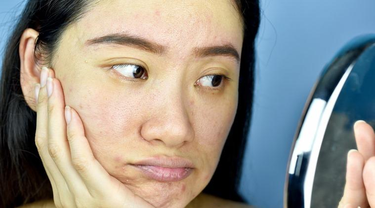 dry skin, dehydrated skin, skincare, indian express news