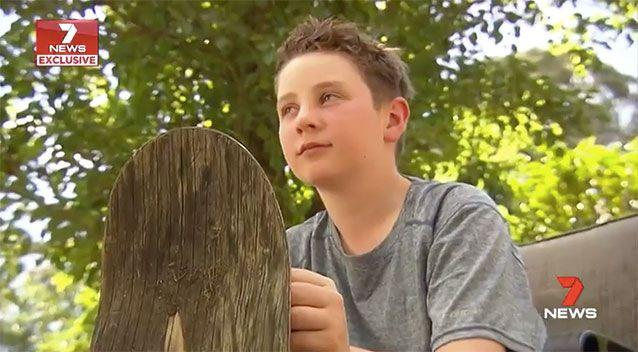 In January, Sam was skateboarding with friends when he fell and hit his head. Source: 7 News