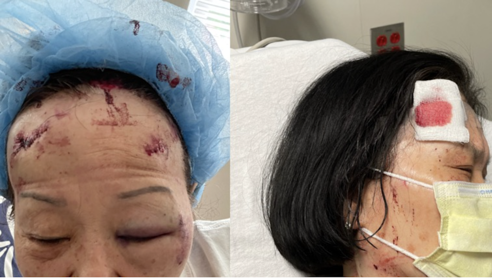 Two Asian women working at a liquor store in Baltimore sustained serious injuries after being attacked by a man with a cinder block.John Yun/gofundme