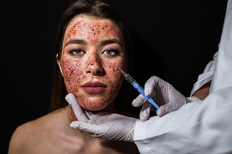 Two clients have reportedly been diagnosed with HIV following a 'vampire facial' [Photo: Getty]