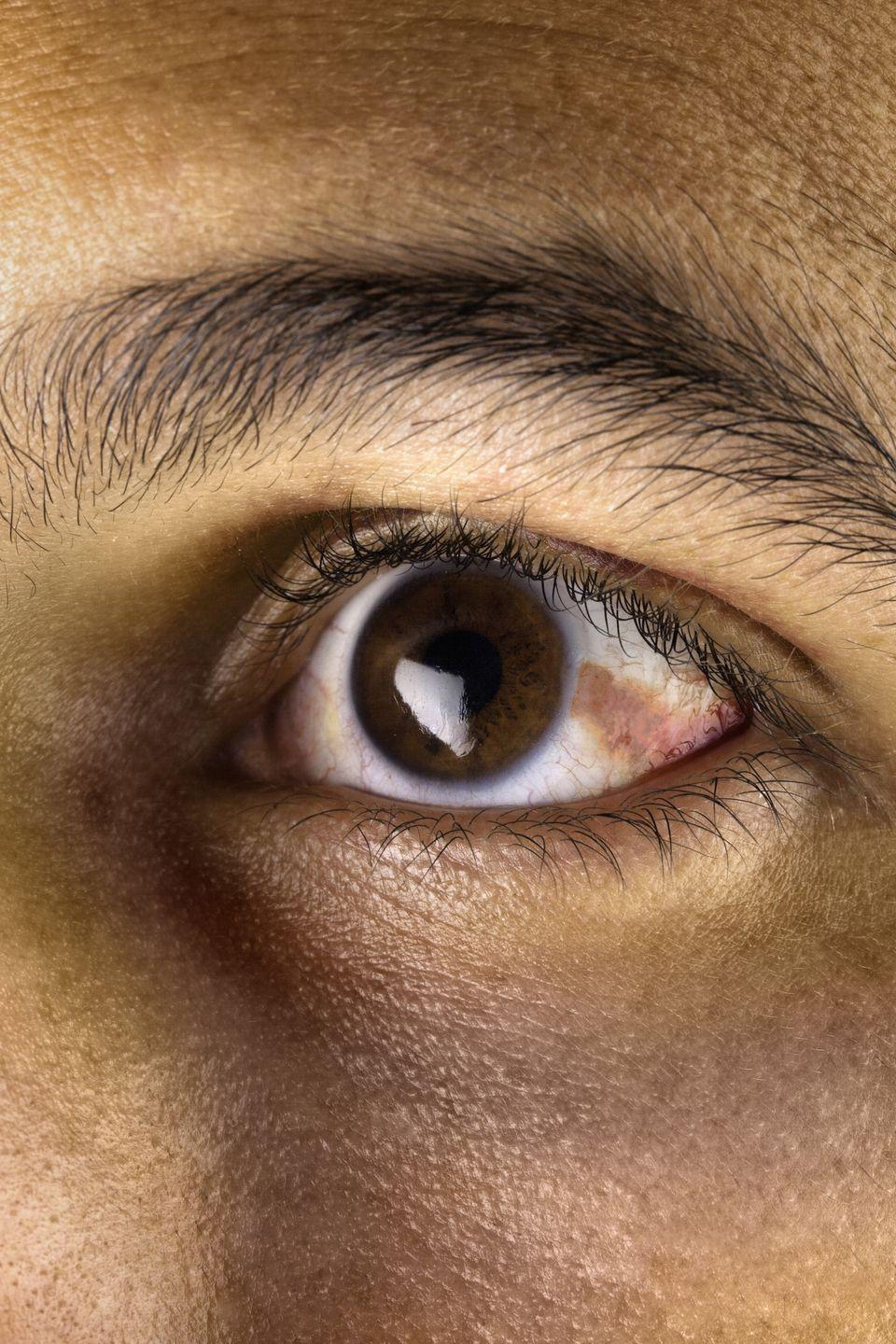 """<p>Some people develop a yellowish patch or bump on the whites to the side of their iris, called a pinguecula. """"A small percentage of these are pre-cancerous, but usually they are not,"""" Dr. Herz says. What causes them? """"They are most often seen in people who spend a lot of time in <a rel=""""nofollow noopener"""" href=""""https://www.womansday.com/health-fitness/wellness/g22509737/signs-of-heatstroke/"""" target=""""_blank"""" data-ylk=""""slk:the sun"""" class=""""link rapid-noclick-resp"""">the sun</a> and are similar to a callus on the skin,"""" she adds. But a <a rel=""""nofollow noopener"""" href=""""https://www.ncbi.nlm.nih.gov/pmc/articles/PMC3872277/#b68-opth-8-087"""" target=""""_blank"""" data-ylk=""""slk:December 2013 study"""" class=""""link rapid-noclick-resp"""">December 2013 study</a> looked at ultraviolet light's effects on the eye and found that wearing specific lenses may protect your peepers from sun damage, so talk to your ophthalmologist if you start seeing the patches.</p>"""