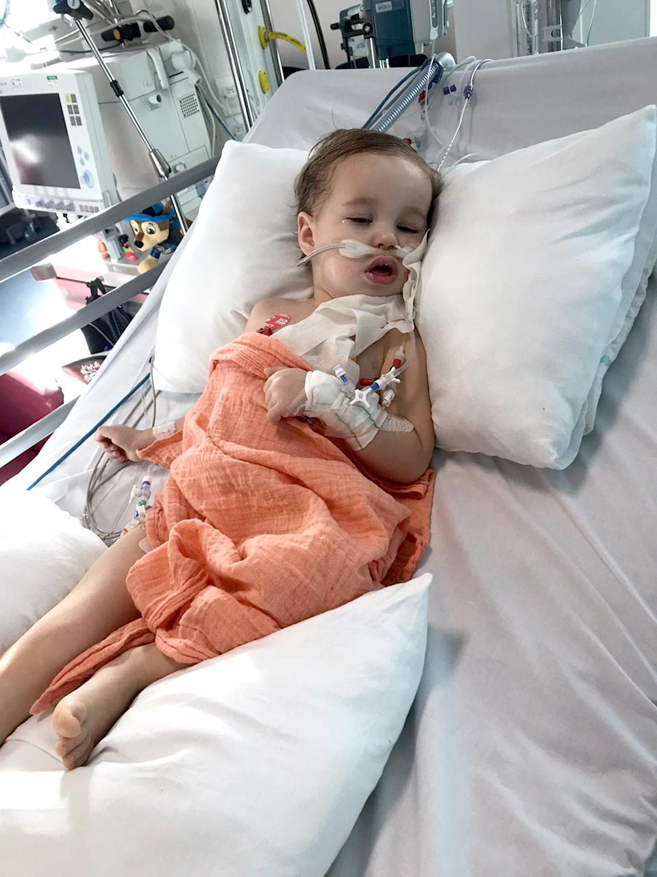 Little Alex had an operation to remove 90% of the tumour and is now having chemotherapy (Caters)