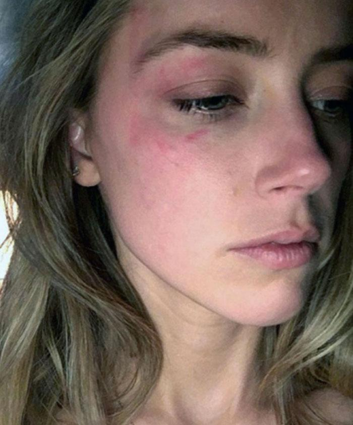 Amber Heard shows bruises she claims were inflicted by Johnny Depp. Photo: Splash News