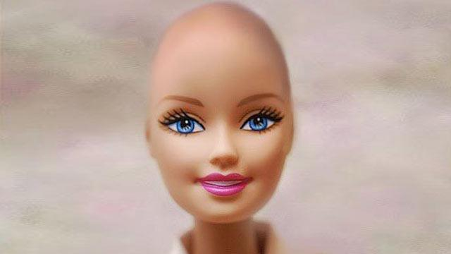 Mattel to Make 'Bald Friend of Barbie' (ABC News)