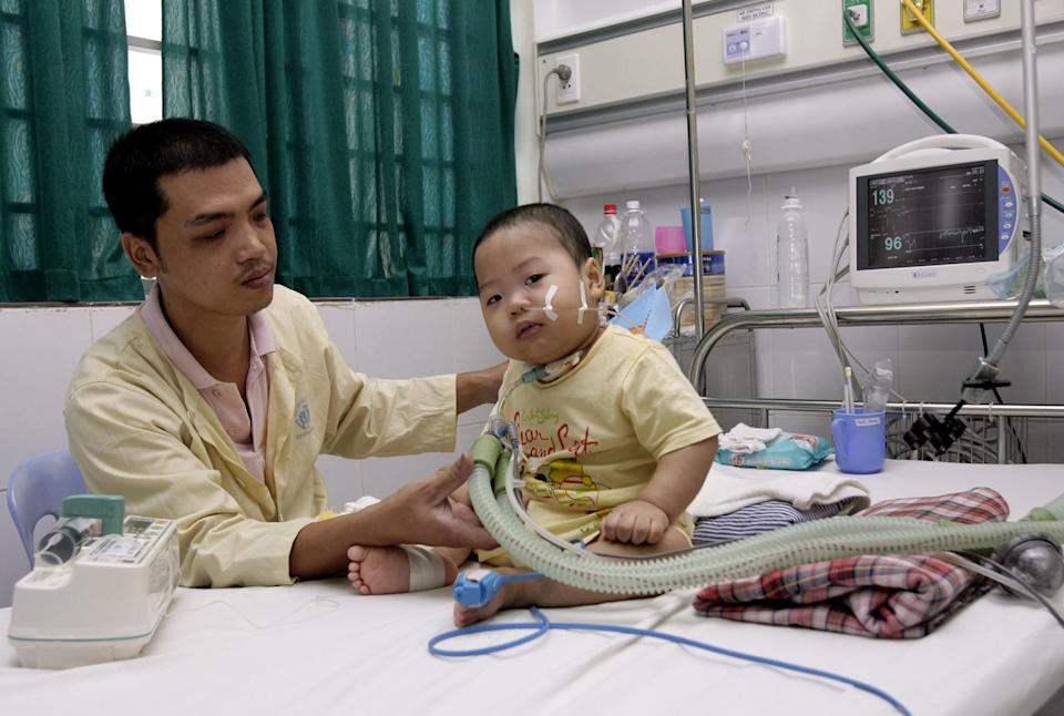 Tran Nam Trung adjusts a tube of the respirator attached to his son Tran Minh Giang who has been hospitalized for the past seven months at the National Hospital of Pediatrics in Hanoi, Vietnam on Thursday, July 12, 2012. The 20-month-old boy fell victim to a particularly menacing form of hand, foot and mouth disease that has killed hundreds of young children across Asia recently. (AP Photo/Tran Van Minh)