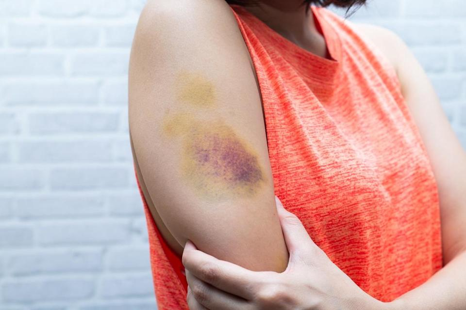 "A bruise is caused by bleeding under the skin; tiny capillaries (blood vessels) are crushed, which expel blood that's trapped under the skin. Initially, the bruise will just look red because the blood is still oxygen-rich. <a href=""https://www.medicalnewstoday.com/articles/322742.php"" rel=""nofollow noopener"" target=""_blank"" data-ylk=""slk:Within one to two days"" class=""link rapid-noclick-resp"">Within one to two days</a>, the blood begins to lose its oxygen, turning purple. Then, after three or more days, bruises will start to turn green, yellow, or grey thanks to compounds called biliverdin and bilirubin that break down the hemoglobin to absorb vitamins and minerals (like iron) for the body to use. The rest of the waste is eventually purged from or absorbed by the body."