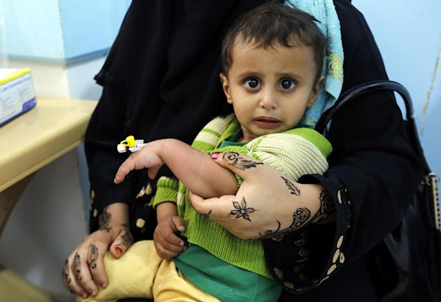 <p>A cholera-infected Yemeni child receives treatment at a hospital in Sanaa, Yemen, 08 May 2017. According to the World Health Organization, a total of 25 Yemenis have died from cholera over the past few days, while 1,350 suspected cases have been reported in the capital Sana?a and several provinces of the conflict-plagued Arab country. (Yahya Arhab/EPA) </p>