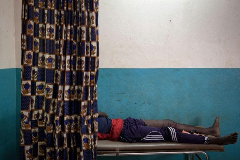 A young man wounded by gunshot is treated at hospital in Paoua, now home to between 15,000 and 17,000 displaced people