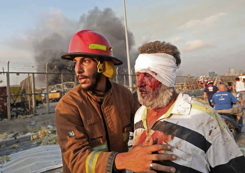 EDITORS NOTE: Graphic content / A wounded man is helped by a fireman near the scene of an explosion in Beirut on August 4, 2020. - Two huge explosion rocked the Lebanese capital Beirut, wounding dozens of people, shaking buildings and sending huge plumes of smoke billowing into the sky. Lebanese media carried images of people trapped under rubble, some bloodied, after the massive explosions, the cause of which was not immediately known. (Photo by ANWAR AMRO / AFP) (Photo by ANWAR AMRO/AFP via Getty Images)