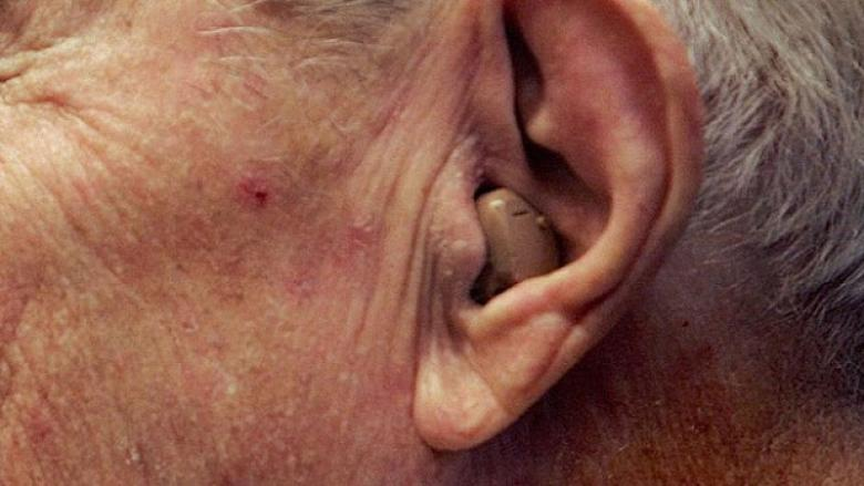 Hear, Hear, P.E.I.: Getting hearing aids to people that can't afford them