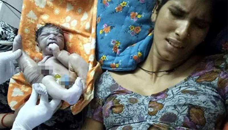 Kuli Bai, 22, gave birth to a boy with a parasitic twin in a northern Indian village. Source: CoverAsia Press.