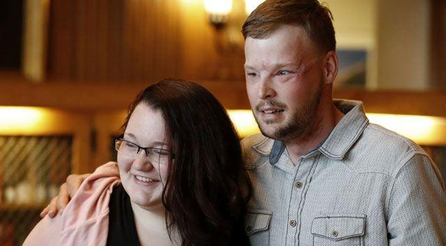Andy, 32, lost part of his face in a shooting and was left with a tiny mouth and prosthetic nose before the transplant. Photo: Associated Press