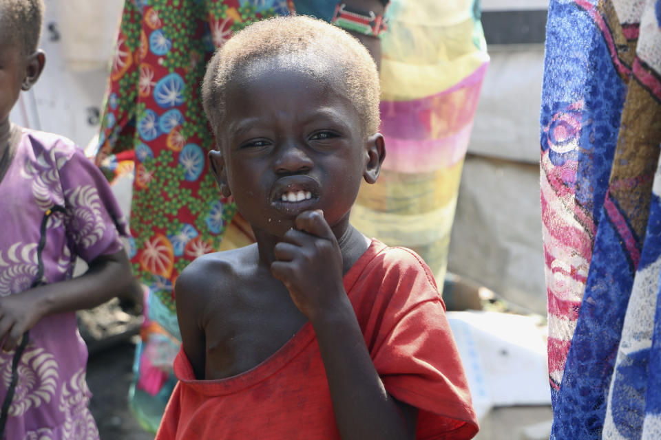 In this Thursday Dec. 17 2020 photo, three-year-old Peter Sebit stands outside a health clinic in Pibor, South Sudan, waiting to get food supplements. South Sudan is one of four countries with areas that could slip into famine, the United Nations has warned, along with Yemen, Burkina Faso and northeastern Nigeria.(AP Photo/Sam Mednick)