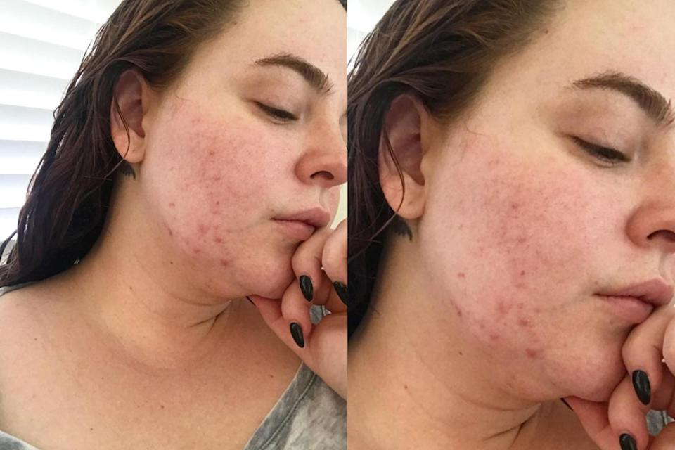 Model Tess Holliday posted a candid photo on Instagram sharing her struggle with acne. (Photo: Instagram/tessholliday)