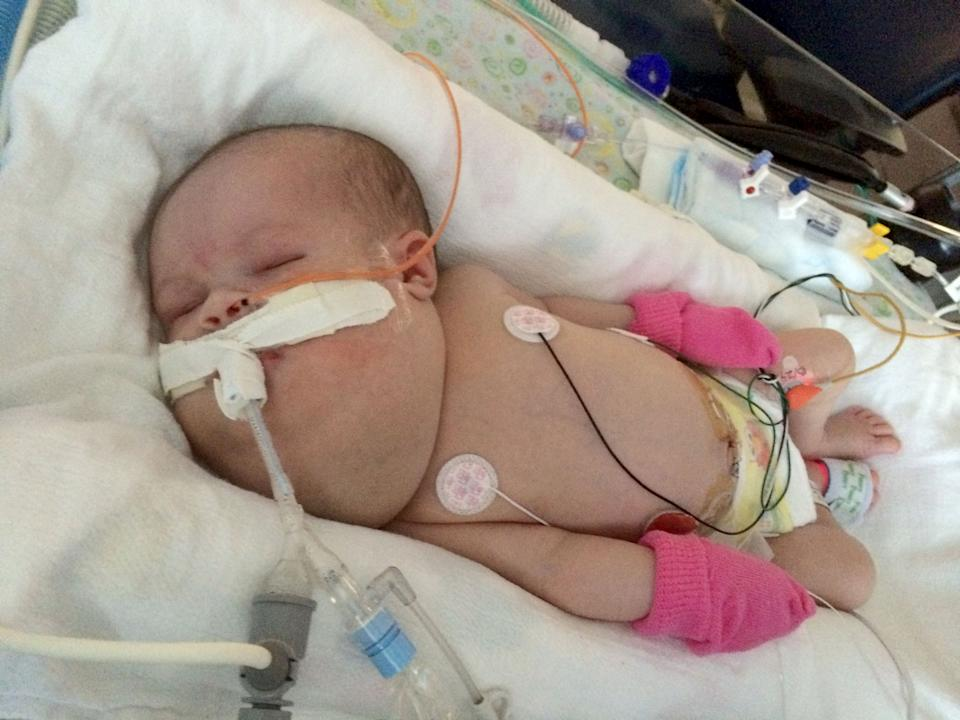 Savannah, who was born with a tumour on her neck the same size as her head, is now thriving. Source: Caters