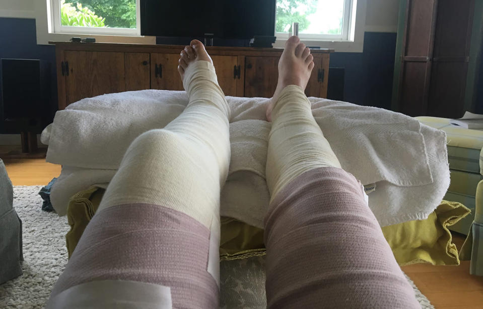 A wild parsnip plant caused a woman's leg to become severely blistered and inflamed. Source: Charlotte Murphy / Facebook