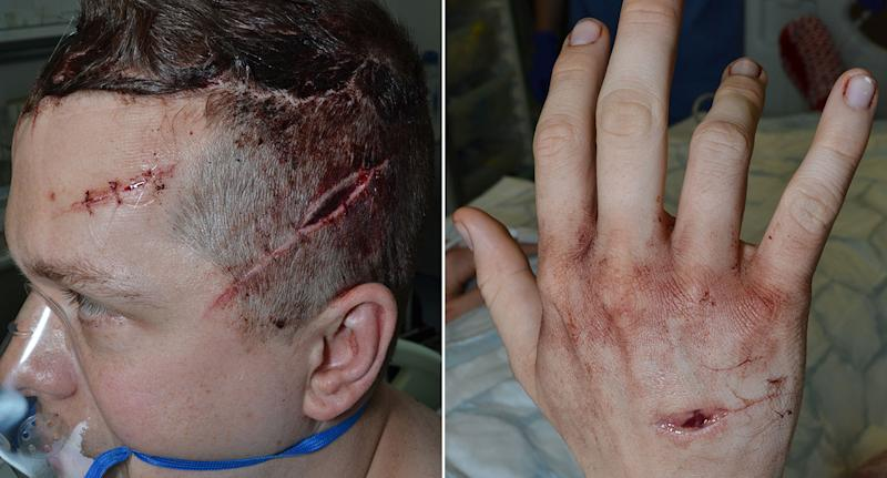 The machete wounds on PC Outten. (PA Images)