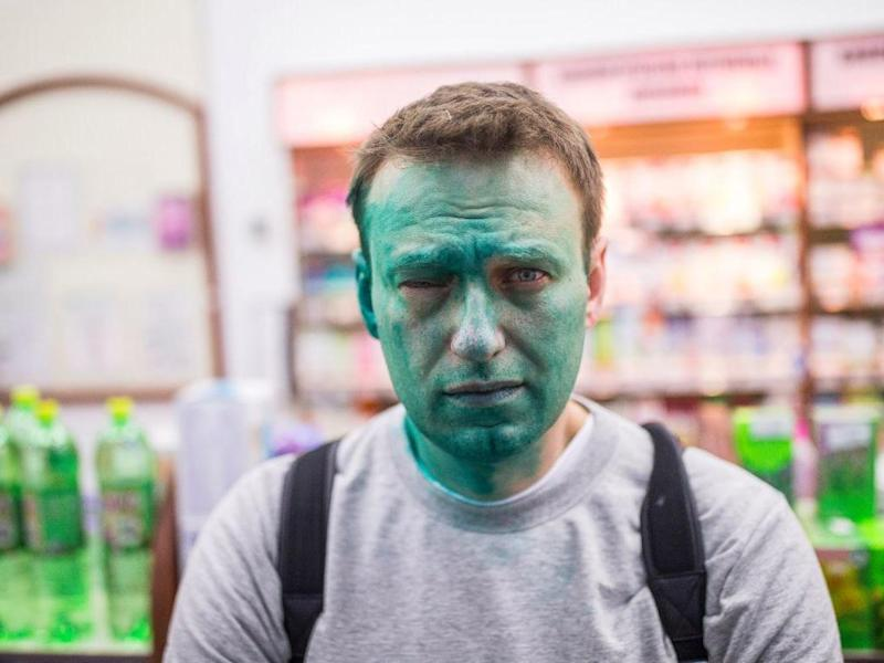 Unknown assailants threw green dye in political activist Alexei Navalny's face, resulting in chemical burns to his right eye: Alexey Navalny