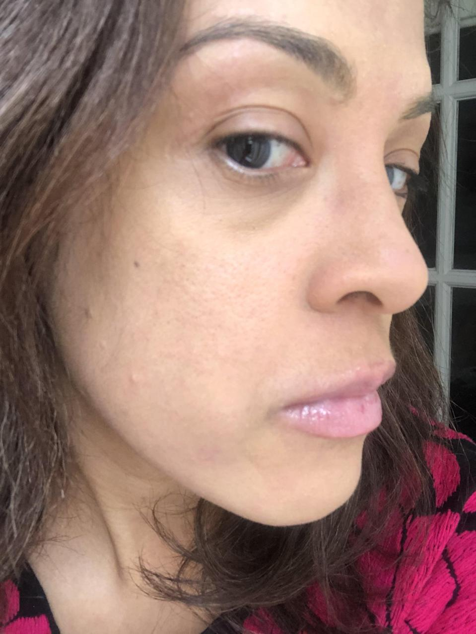 """<p>Here's what my face looks like with <span>Rare Beauty's concealer</span> dabbed onto dark spots with the doe-foot applicator tip and onto larger zones (like the side of my nose) with the long, flat side.<br><br> After I targeted problem spots, I used my fingers to <a href=""""https://www.popsugar.com/beauty/Should-Foundation-Match-Face-Neck-8091632"""" class=""""link rapid-noclick-resp"""" rel=""""nofollow noopener"""" target=""""_blank"""" data-ylk=""""slk:spread this product all over my face"""">spread this product all over my face</a>, too. I'm definitely impressed by how well this formula covered my skin and still ended up in a radiant finish, not at all cakey or dry.</p>"""